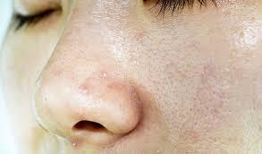 Pele oleosa x protetor solar: dermatologista oferece dicas de cuidado para as altas temperaturas
