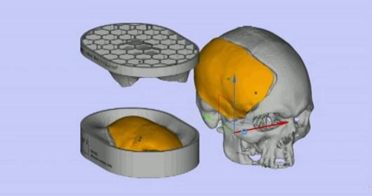 Fiocruz desenvolve tecnologia para reconstrução craniana