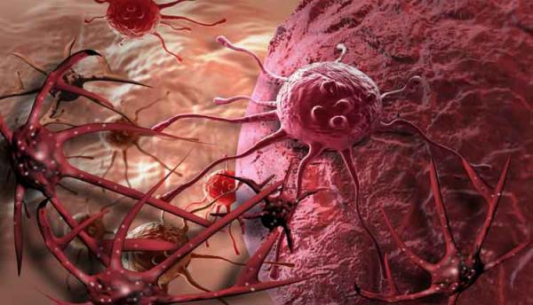 Governo avalia incorporação de medicamentos já disponíveis na rede privada para tratamento de câncer de pele agressivo no SUS