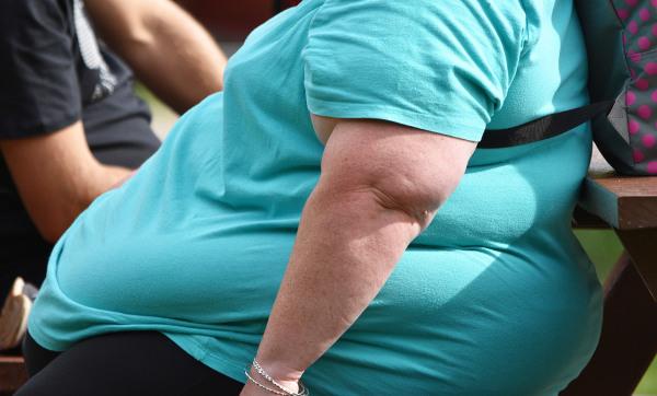 Obesidade está presente em metade dos internamentos por COVID-19 nos EUA e na França